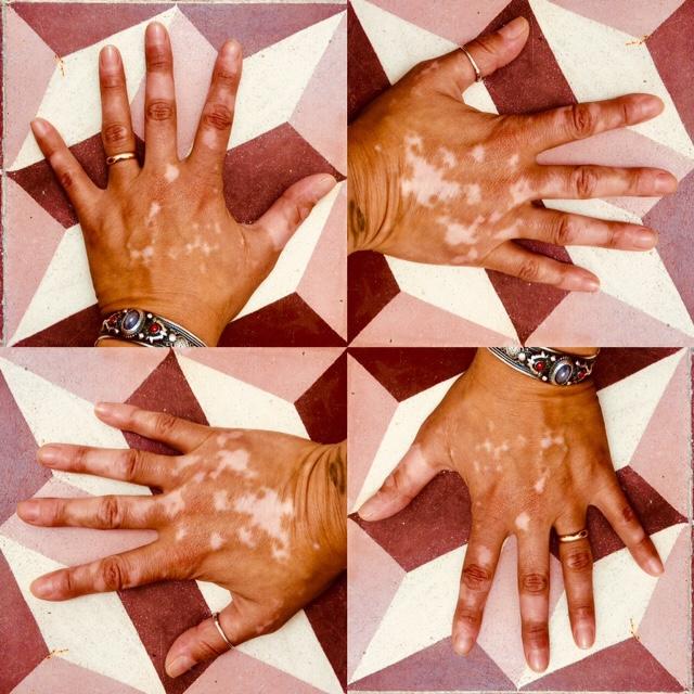 vitiligo 2018
